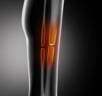 New Drug Makes Bones Stronger but Doesn't Keep Them Safer