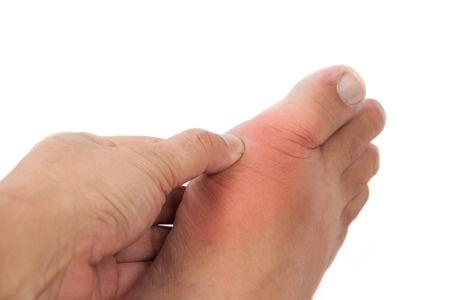 7 Easy Ways to Get Rid of Gout