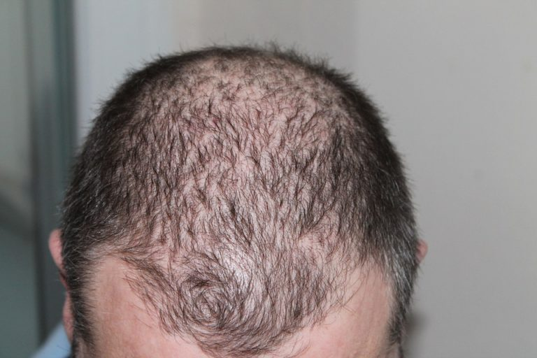 A Proven Treatment For Hair Loss